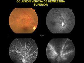 oclusión hemiretina superior