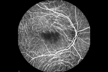 angiografia con verde de indocianina