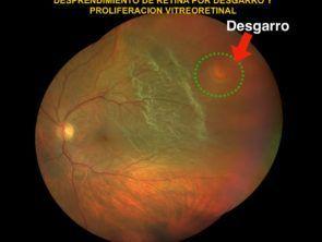 desgarro retina