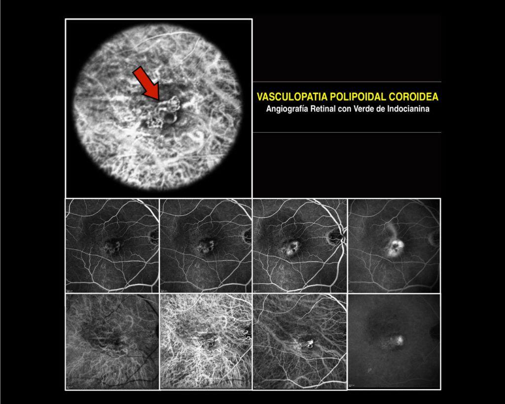 vasculopatia