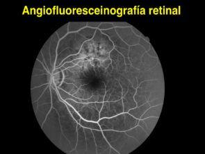 angiografia retinal