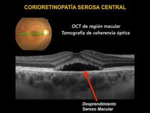 oct de region macular