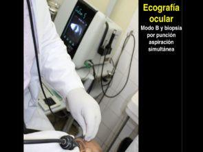 ecografía ocular