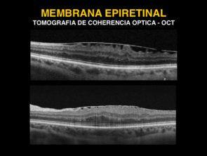 membrana epiretinal