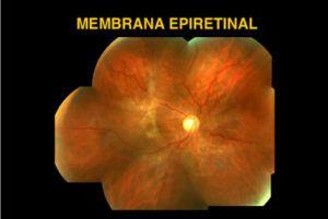 membranas epimaculares