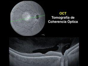 tomografía retina