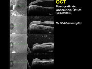 tomografía de coherencia
