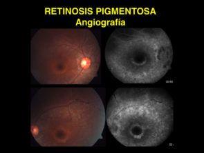 RP angiografia