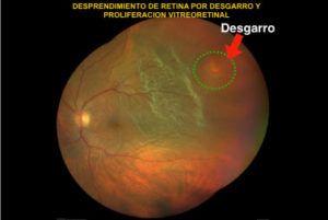 desprendimiento de retiina