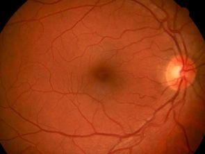 retinografia 1