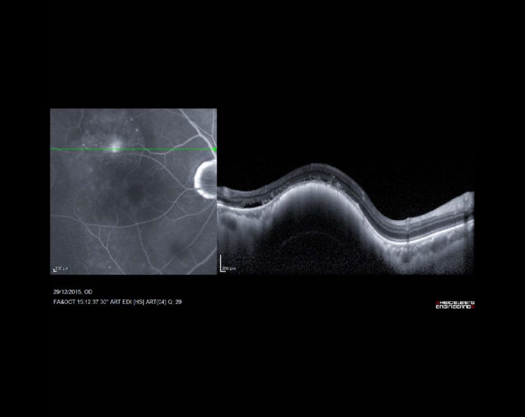 tumor en retina y coroides