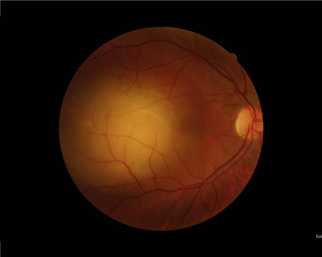 tumores de retina